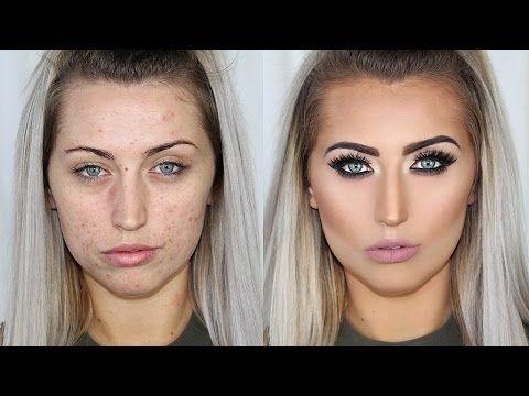 How to cover men's acne & scars // men's makeup tutorial.